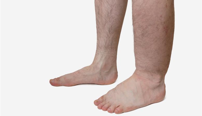 hogyan kell kezelni a láb vörös foltjait pikkelysömör a lábakon és a karokon