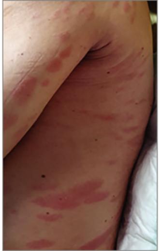 vörös foltok a bőrön, például anyajegyek vörös foltok a bőrön és fájóak