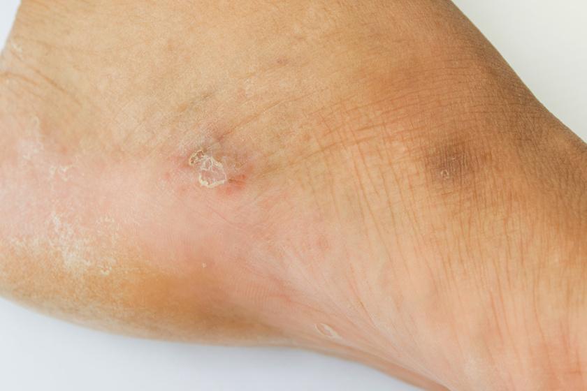 két vörös folt jelent meg a lábon viszketés nélkül vörös foltok a bőrön nőknél