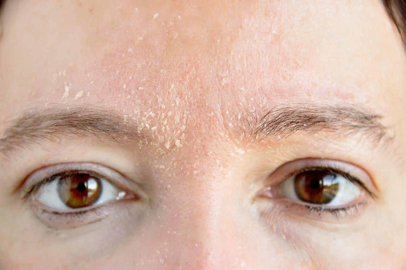 Az arcon nagy vörös foltok pikkelyesek, A bőr elszíneződése nem maga betegség, csak tünet