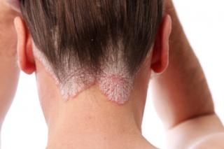 pikkelysömör a lábakon alternatív kezelés milyen betegség, amikor a foltok vörösek az arcon