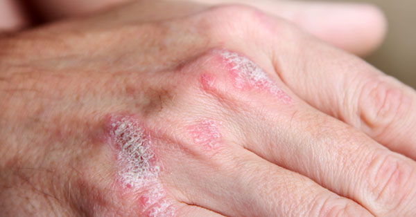 új pikkelysömör kezelés 2020 duzzadt vörös folt a karon