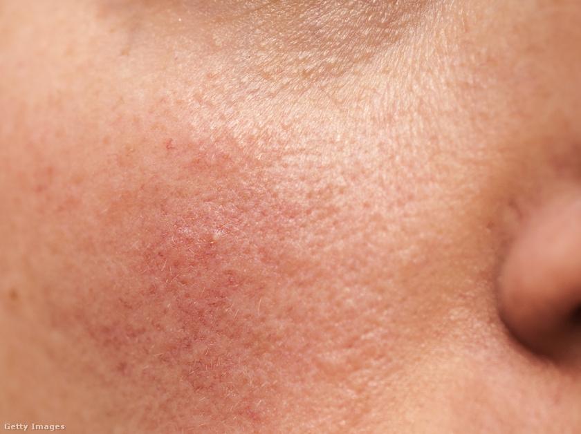 vörös foltok az arcon forrók phosphogliv a pikkelysömör kezelésében