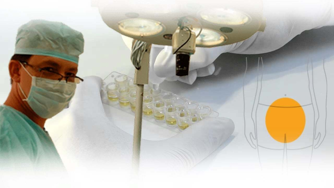 cycloferon pikkelysömör kezelése
