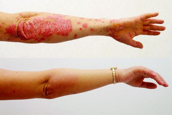 Gyógyítottam a kéz pikkelysömörét kezét a hideg vörös foltoktól