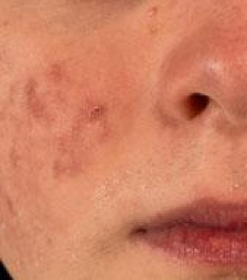 ecet pikkelysömör kezelésére reggel vörös foltok az arcon