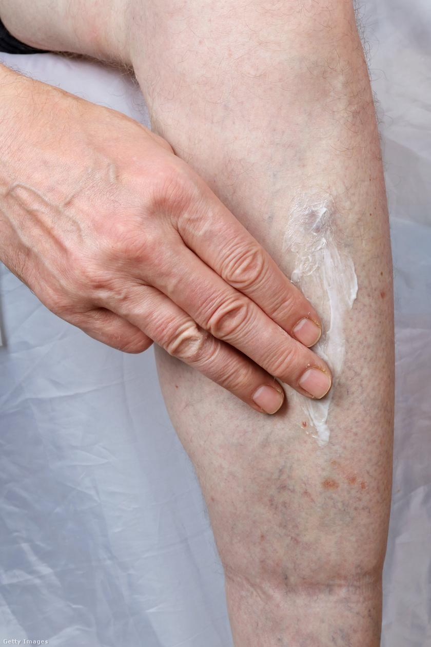 vörös foltok a lábakon égnek és viszketnek pikkelysömör kezelésének szakértői tanácsai