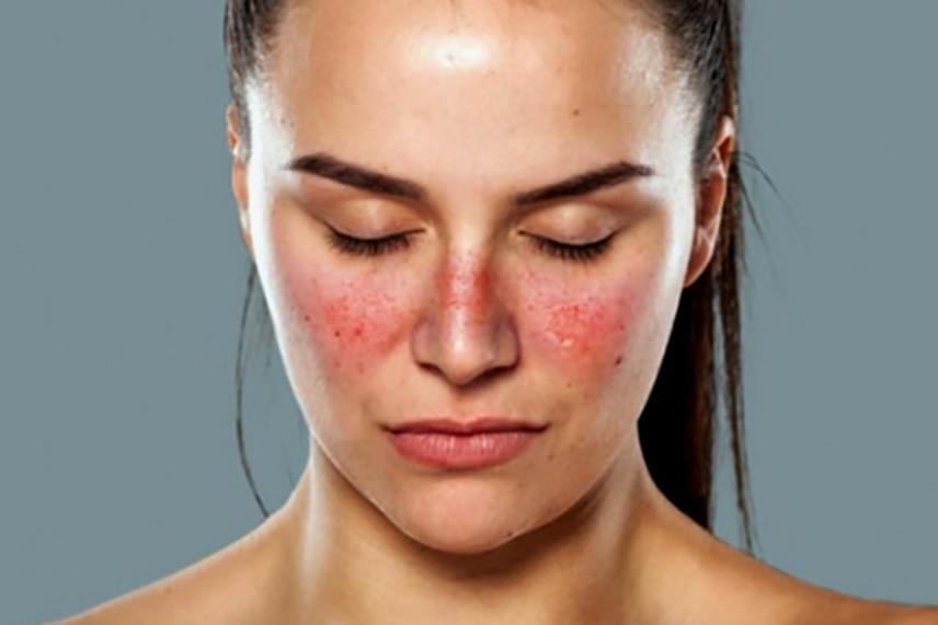 az arc mosás után vörös foltokkal borul