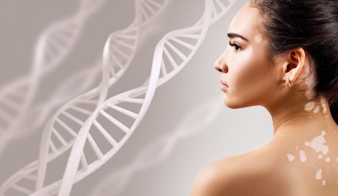 fehéríti a bőrt a vörös foltoktól melyik orszgban kell kezelni a pikkelysmrt