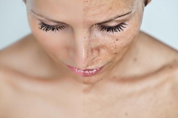 vörös pikkelyes foltok az arcon viszketés kezelés piros kerek folt a bőr fotón