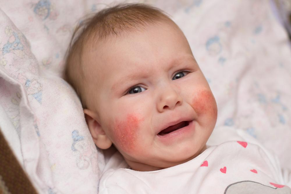eltávolított anyajegyek az arcon vörös foltok