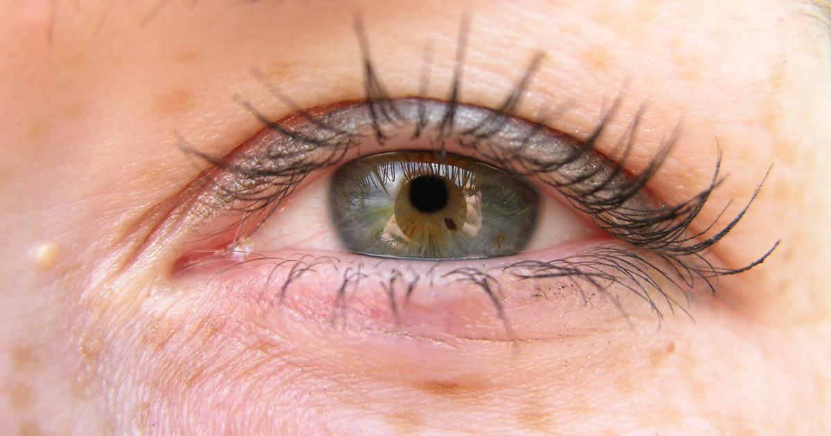 miért jelennek meg vörös foltok a szem alatt és viszketnek