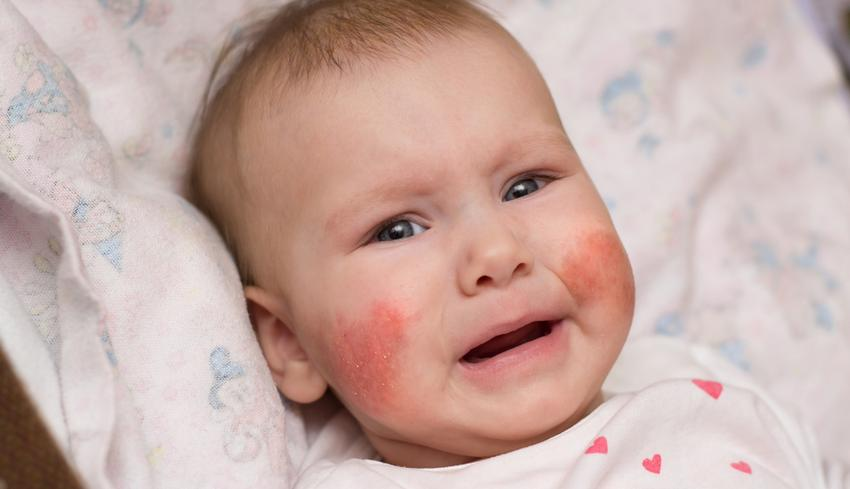 a disznó viszket és piros foltok vannak vörös folt az arcon szegéllyel