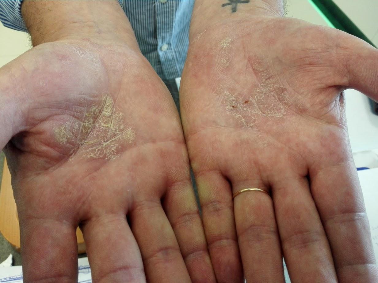 vörös folt jelent meg a kézen mint egy zúzódás
