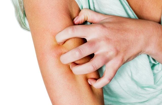 a megfelelő táplálkozás szerepe a pikkelysömör kezelésében piros folt a lábon szárad