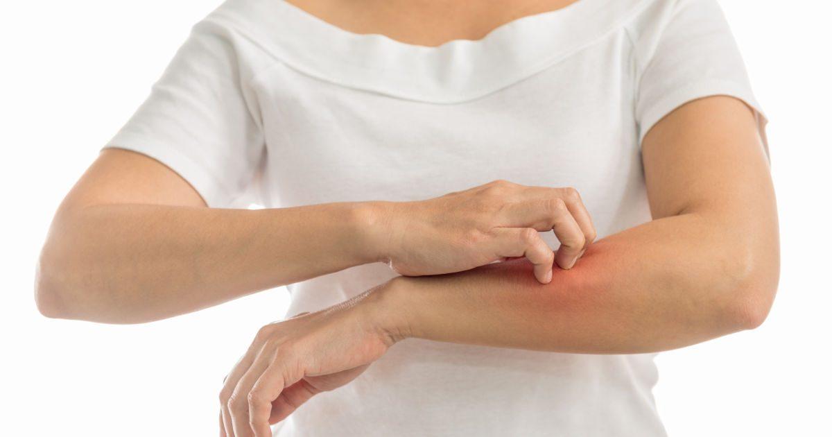a testet vörös foltok és viszketés borítja, mint kezelni frakció 2 a pikkelysömör kezelésében