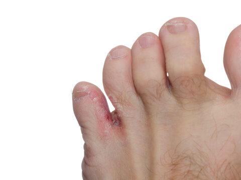 Láb- és körömgomba tünetei és kezelése - HáziPatika
