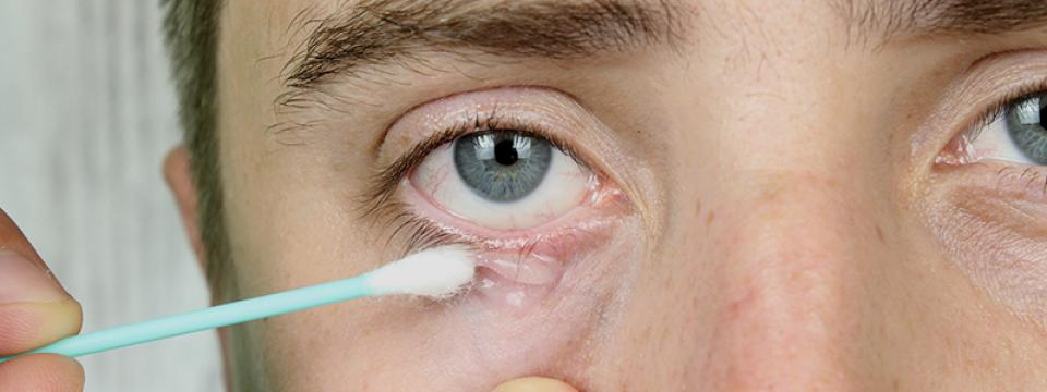 a szem alatti vörös foltok kezelése