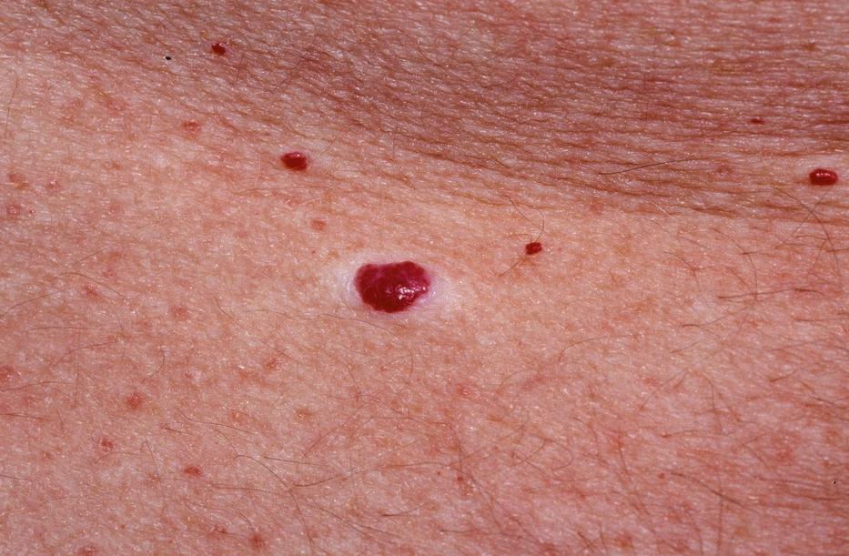 pikkelysömör okoz otthoni kezelst vörös, nem gyógyuló foltok a bőrön