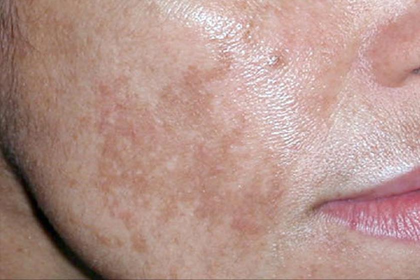 az arcbőr foltjai pirosak, mint kezelni a pikkelysömör súlyosbodása otthoni kezelés