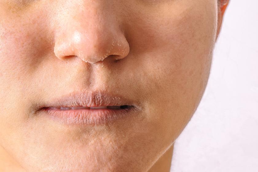 száraz vörös foltok az arc bőrén hogyan és hogyan kell kezelni a lepedék pikkelysömörét