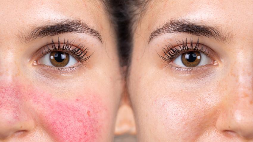 ha az arc bőrét vörös foltok borítják pikkelysömör a nyakon hogyan kell kezelni