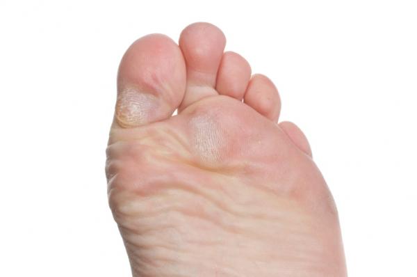 vörös foltok a lábakon, mint a bőrkeményedés