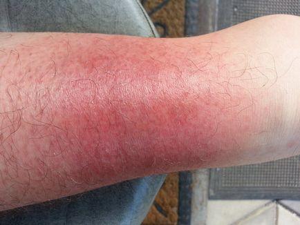 piros foltok a lábakon és a karokon fotó az arc vörös foltjai és a pelyhek okai