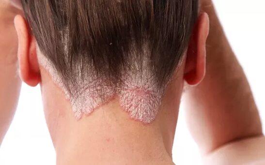pikkelysömör kezelés elérhető vörös foltok és foltok a bőrön