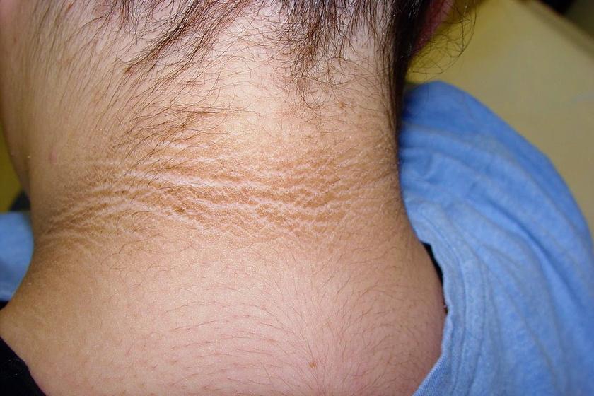 vörös foltok a karokon és a nyakon irritáció az arcon vörös foltok és pattanások formájában