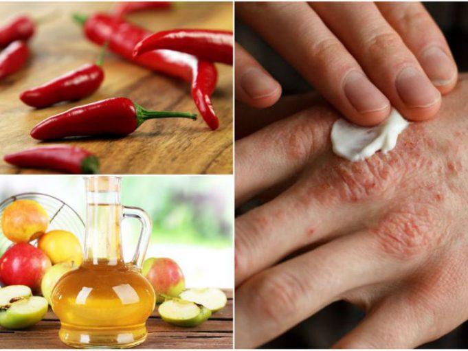 almaecet pikkelysömör kezelés vélemények vörös foltok jelentek meg az arcon, mit kell tenni