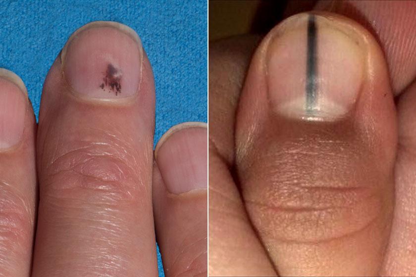 piros folt a kezén mit jelent diabetes mellitus vörös foltok a lábakon fotó