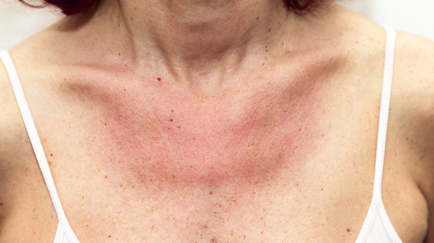fejbőrproblémák vörös foltok hámlanak vörös foltok a kezeken a nap után