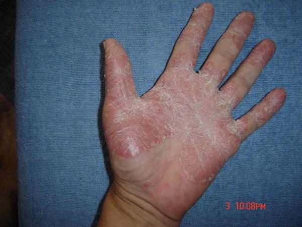 hogyan lehet gyógyítani a pikkelysömör tenyéren és lábán piros foltok a lábakon dudorokkal