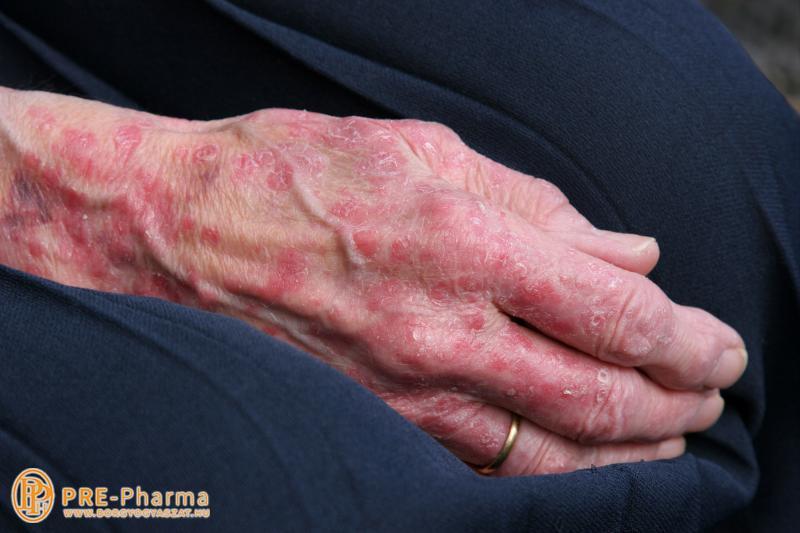 a könyökön vörös foltok viszketnek pikkelysömör kezelése nagy korban