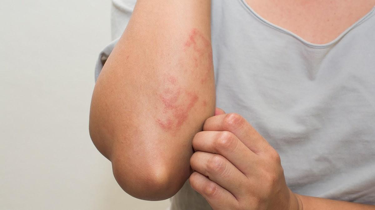 vörös foltok a kezeken és kiütések vörös folt jelent meg a bőrön és fáj