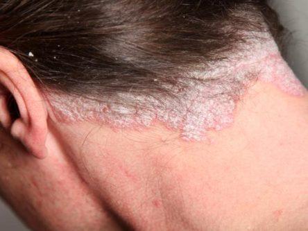 pikkelyes zuzmó fotó, hogyan kell kezelni a pikkelysömör alternatív kezelése a testen