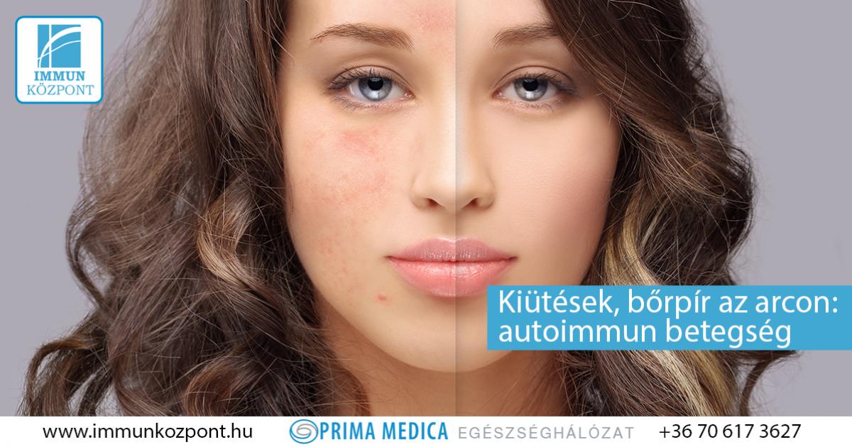 vörös foltok jelentek meg az arcon, mit kell tenni vörös folt jelent meg az arcon és növekszik