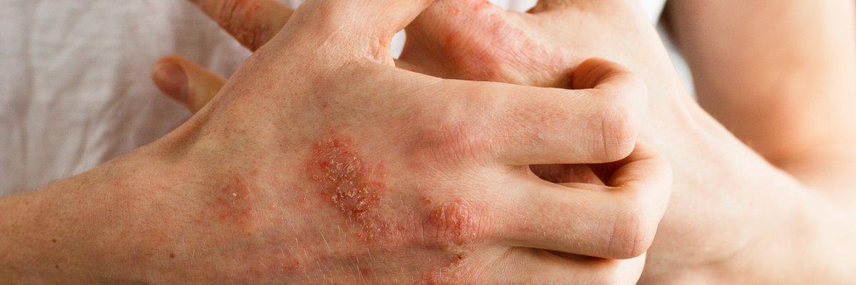 udalyanchi pikkelysömör kezelése vörös foltok a testen viszketnek és lehúzódnak a fénykép