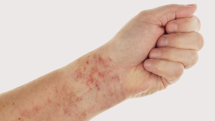 vörös folt a lábán egy ponttal vörös foltok az arcon a nőknél