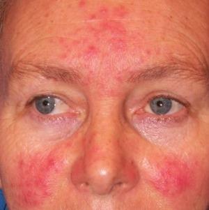 az arc kopása után vörös folt tenyér viszkető piros foltok fotó