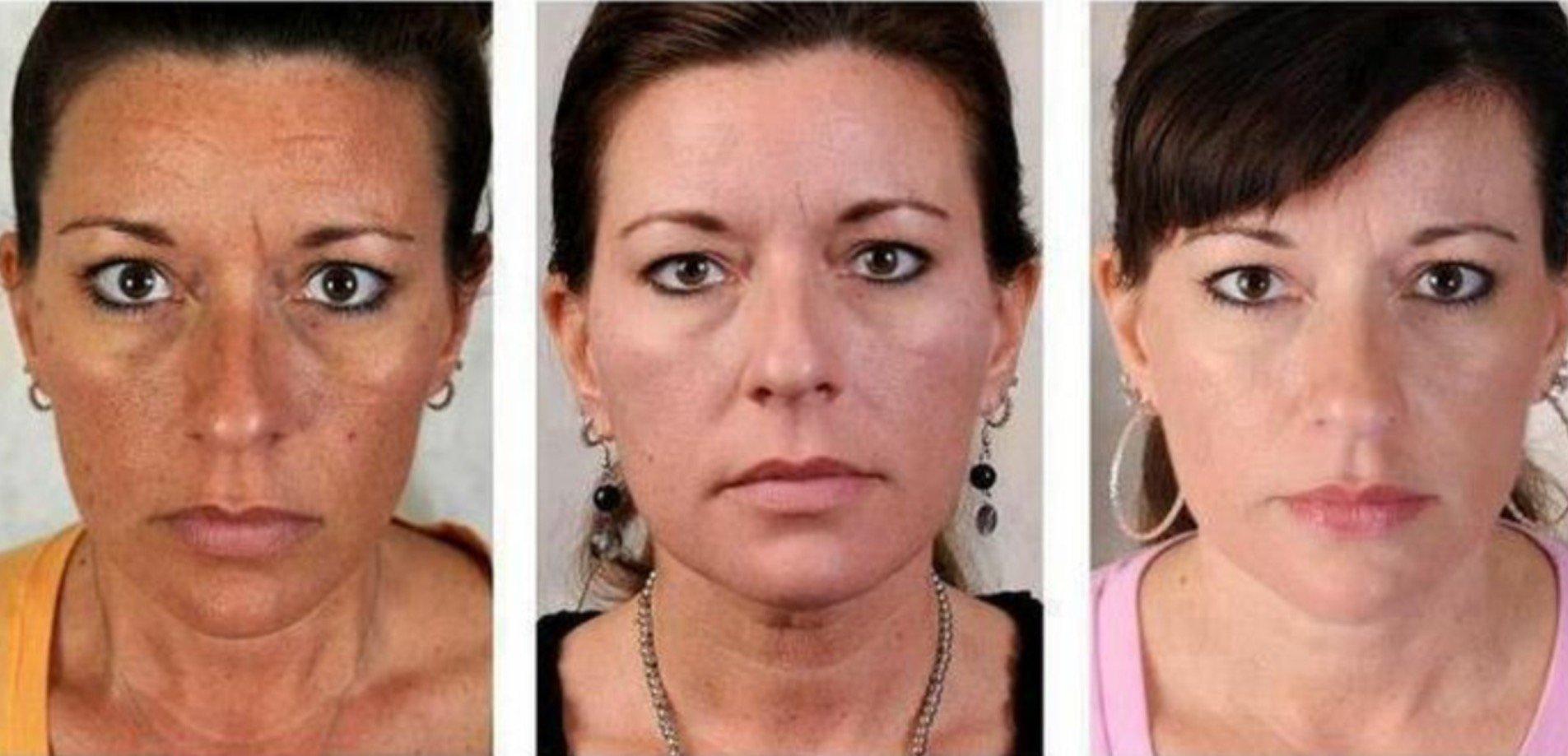 fehéríti a bőrt a vörös foltoktól az arc bőrét vörös, száraz foltok borítják