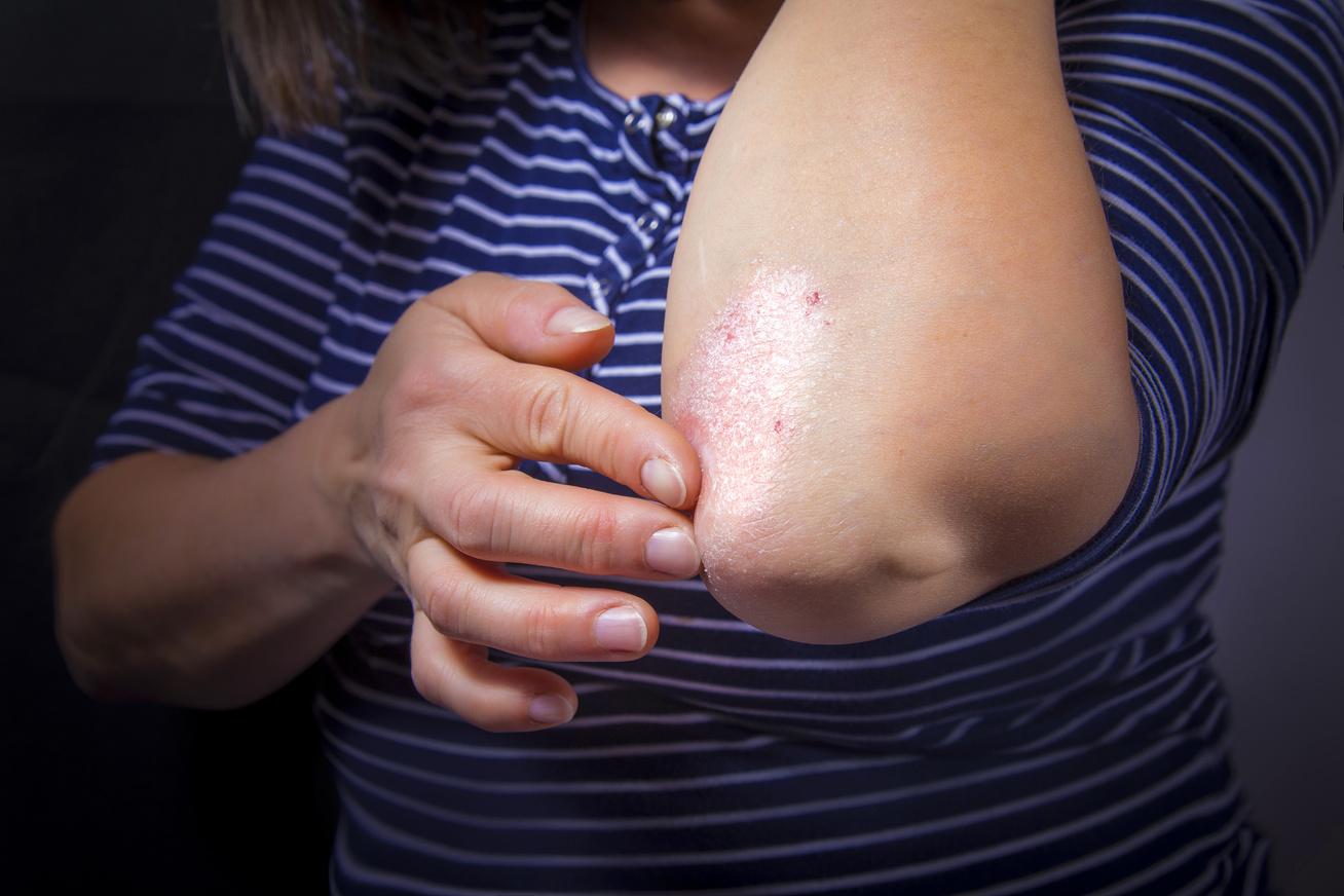 Gyógyítottam a kéz pikkelysömörét pikkelysömörrel jobb kezelni
