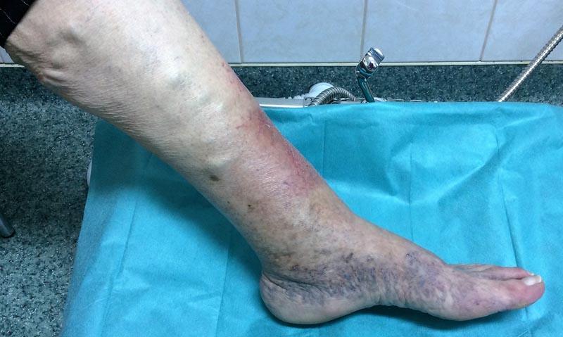 a lábak megduzzadnak és vörös foltok jelennek meg)