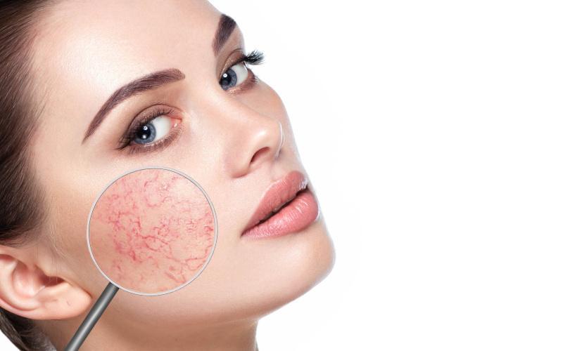 hogyan kell kezelni az arcbőr piros foltjait