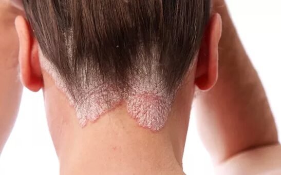 hogyan kezeli a fülben lévő pikkelysömör?