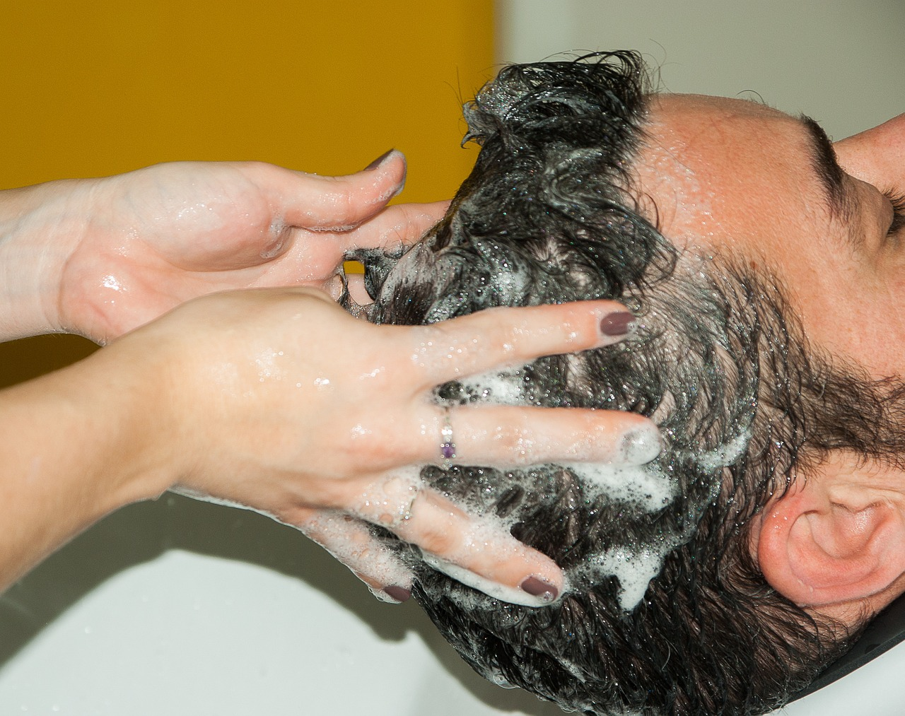hogyan lehet eltávolítani a pikkelysömör fejbőrt vörös foltok jelentek meg és viszkettek a férfiaknál