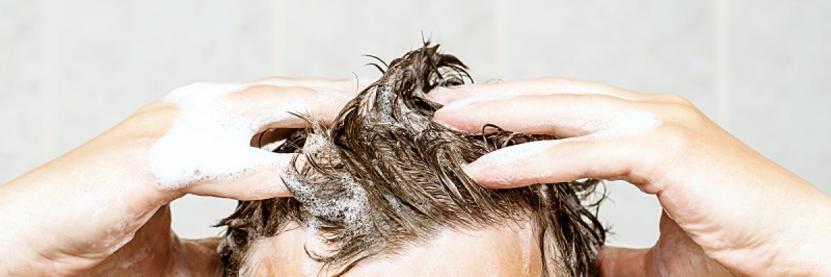 hogyan lehet eltávolítani a pikkelysömör fejbőrt krém pikkelysömörre Thaiföldön