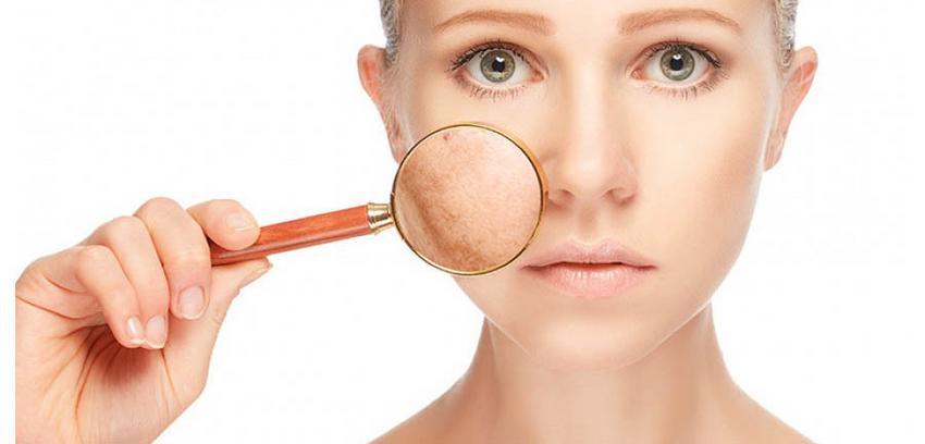 hogyan lehet enyhíteni egy vörös foltot az arcon