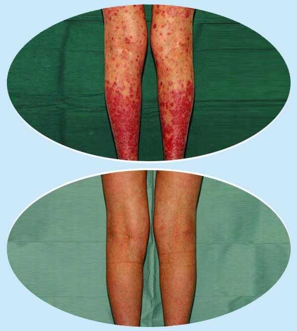 hogyan kezeljük a vörös száraz foltokat az arcon